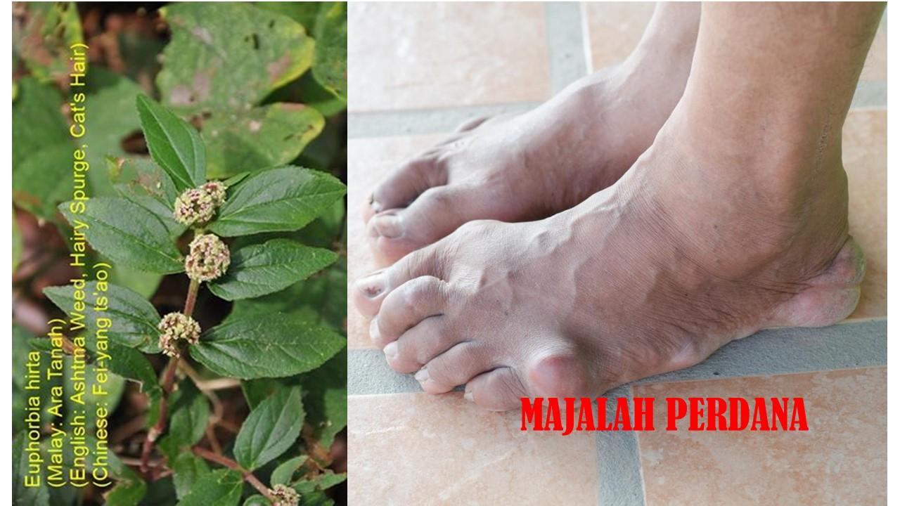 Mengubat Penyakit Gout